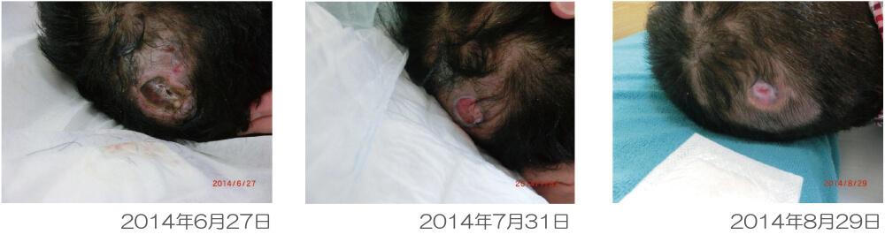 ジェルトロンピロー・マイズで褥瘡(床ずれ)が治癒した事例